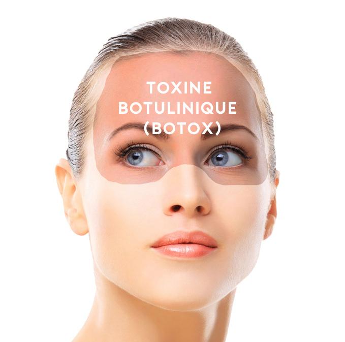 botox photo